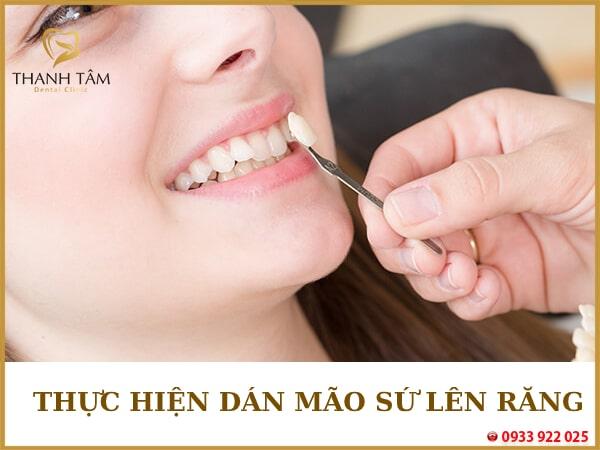Thực hiện dán mặt dán sứ lên răng