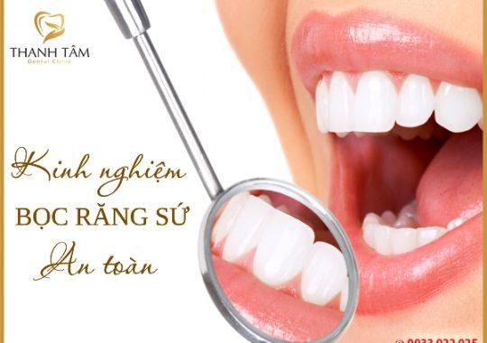 Kinh nghiệm bọc răng sứ