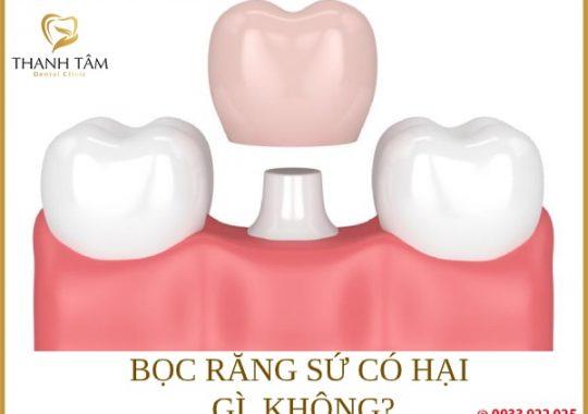 bọc răng sứ có tác hại