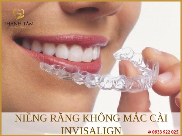 Niềng răng không mắc cài Invisalign