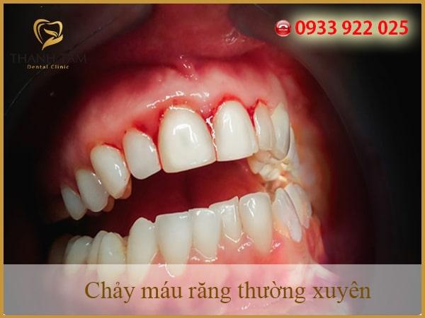 Chảy máu răng nhiều có nguy hiểm không?