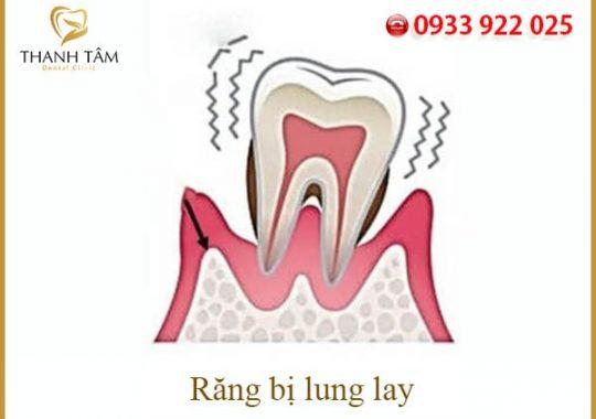 Răng lung lay phải làm sao để răng đứng chắc lại?