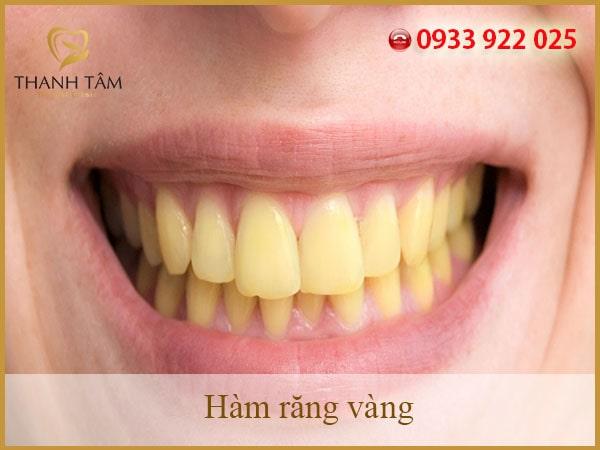 Hàm răng vàng có nguyên nhân là gì