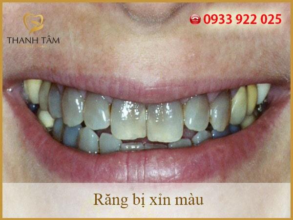 Răng ố vàng tác động như thế nào đến thẩm mỹ và sức khỏe của bạn?