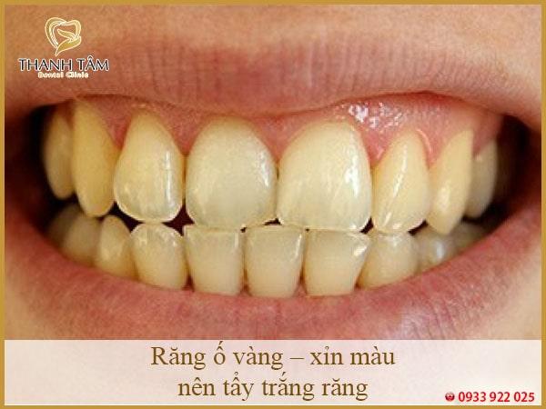 răng ố vàng xỉn màu nên tẩy trắng răng