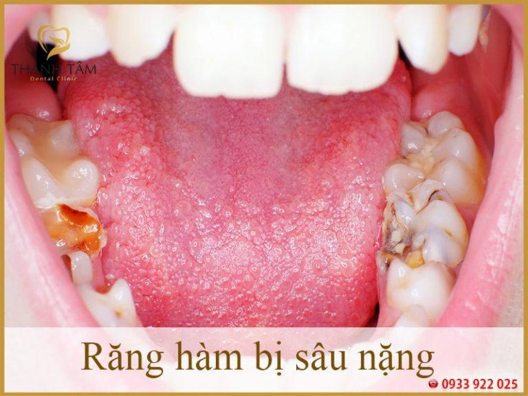 Răng hàm bị sâu chỉ còn chân răng