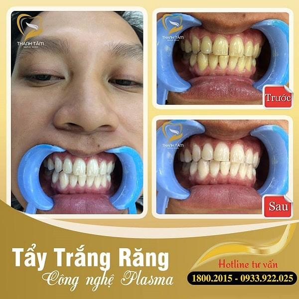 Khách hàng tẩy trắng răng tại Nha khoa Thanh Tâm