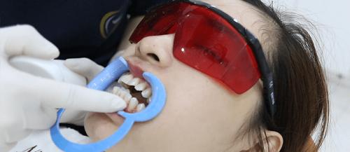 Làm sạch răng miệng và cạo vôi răng