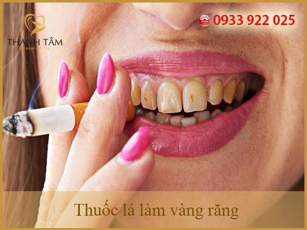 thuốc lá làm vàng răng-min