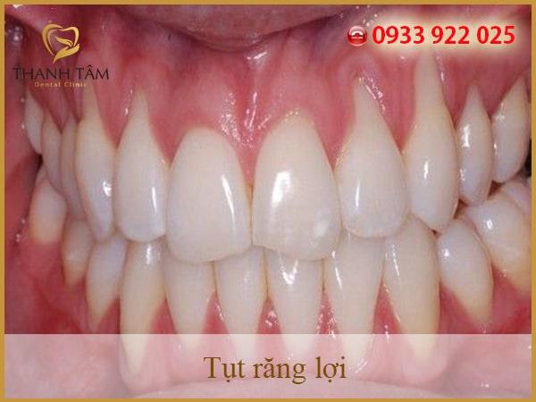 Tụt lợi răng là gì