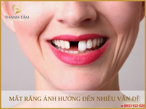Mất răng lâu ngày ảnh hưởng đến sức khỏe và các hoạt động thường ngày
