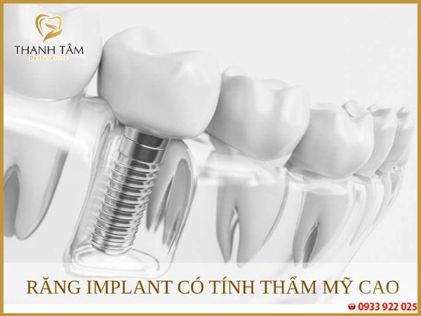 cấy ghép Implant Giúp khách hàng sở hữu hàm răng đều đẹp