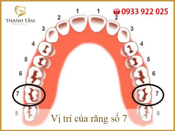 Mất răng số 7 hàm dưới
