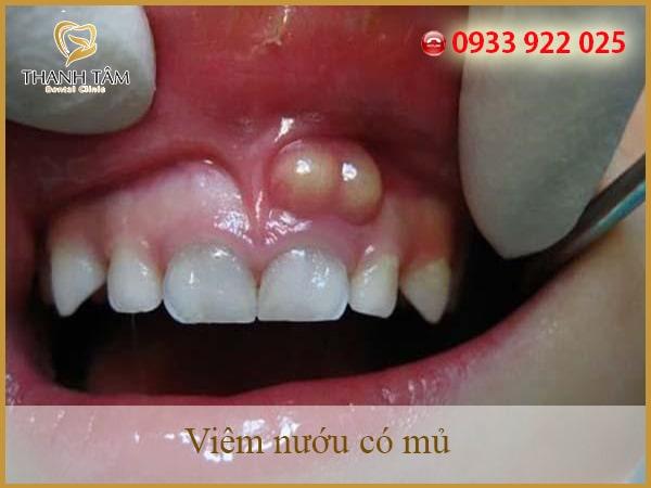 Nướu răng bị mủ là bệnh lý gì?