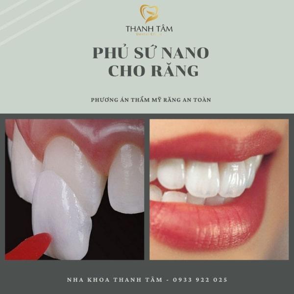 Phủ sứ nano cho răng