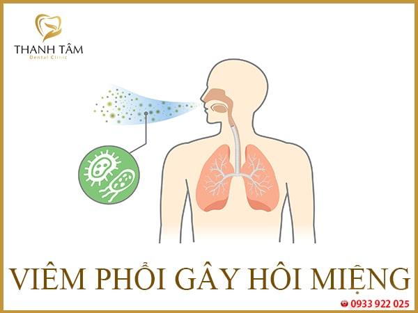 Nguyên nhân dẫn đến hôi miệng do nhiều bệnh lý khác nhau