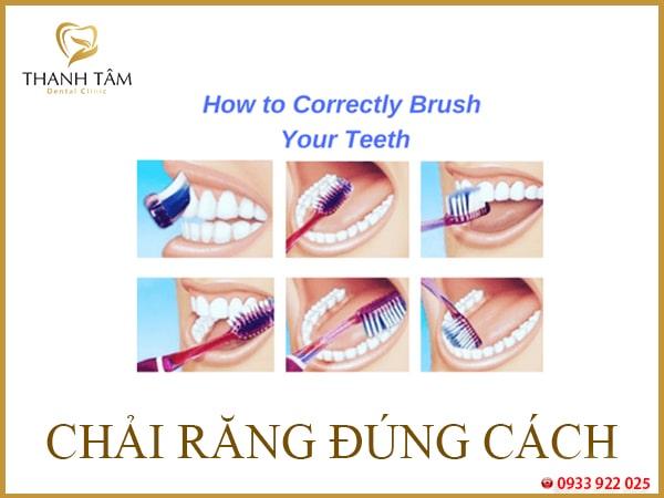 Cách vệ sinh răng miệng đúng cách sau khi nhổ răng khôn và niềng răng