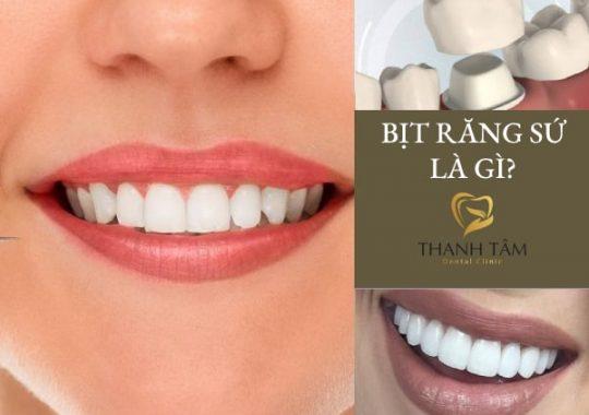 Phương án nâng cao tính thẩm mỹ cho răng hiệu quả