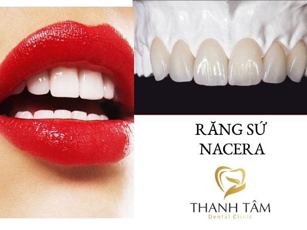 Bịt răng sứ Nacera