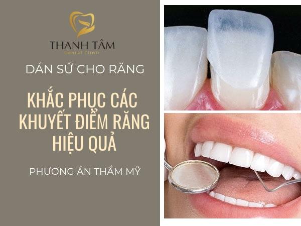 Dán sứ cho răng