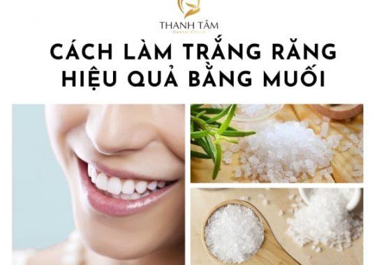 cách làm trắng răng tại nhà bằng muối