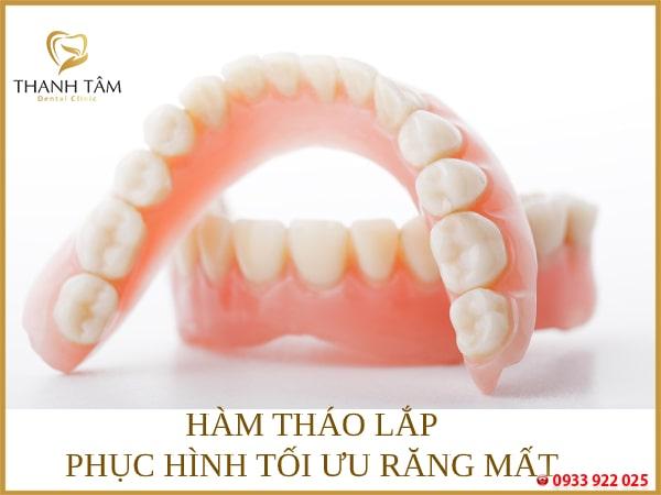 Hàm tháo lắp - giải pháp phục hình khuyết điểm mất răng