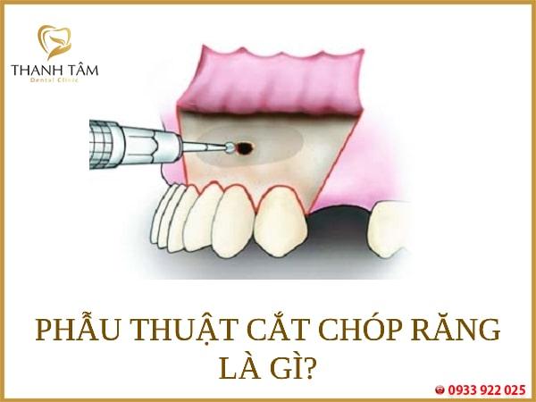 phẫu thuật cắt chóp răng là gì