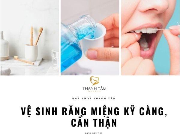 Vệ sinh răng miệng sau khi cấy ghép Implant