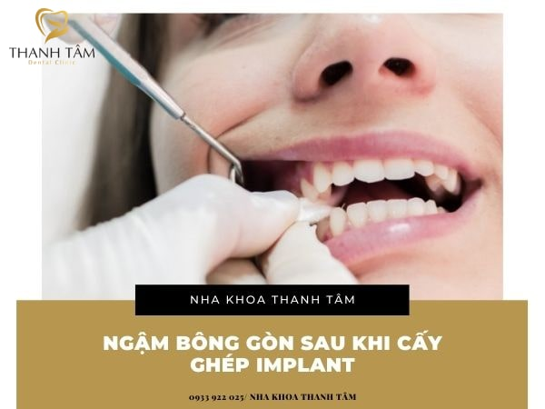 sau khi cấy ghép implant