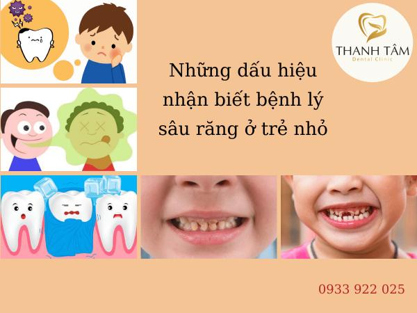 Những dấu hiệu nhận biết bệnh lý sâu răng ở trẻ nhỏ