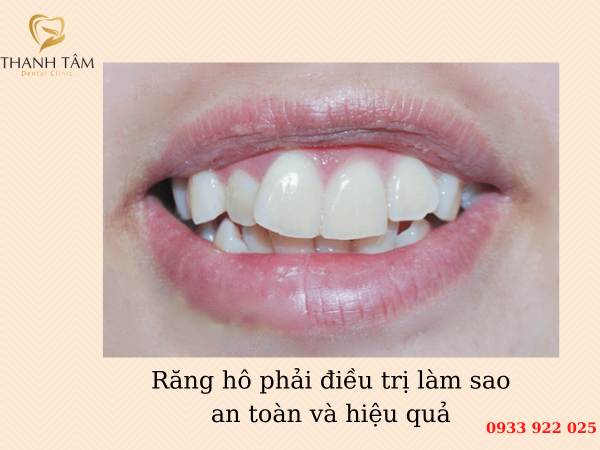 Răng hô điều trị làm sao