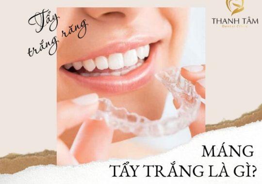 Máng tẩy trắng răng tại nhà