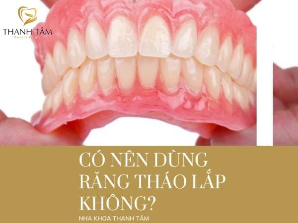 Có nên dùng răng tháo lắp không?