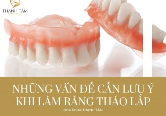 Những vấn đề cần lưu ý khi làm răng tháo lắp là gì?