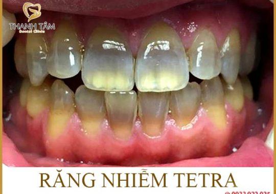 Răng nhiễm tetra