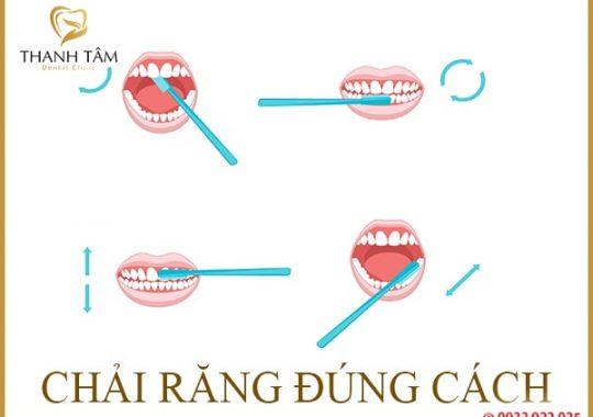 vệ sinh răng
