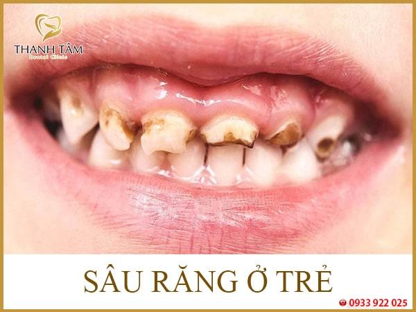 Tại sao răng bị ố vàng