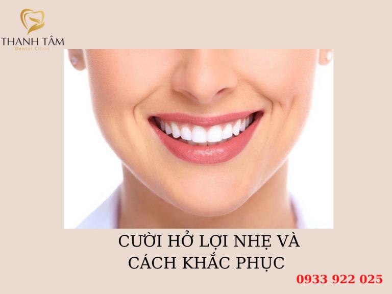 Cười hở lợi nhẹ và cách khắc phục