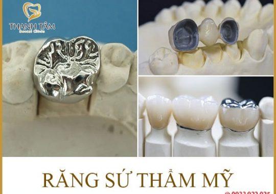 cách chăm sóc răng sứ
