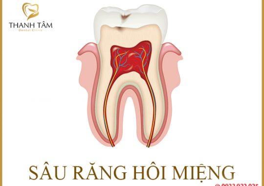 sâu răng hôi miệng