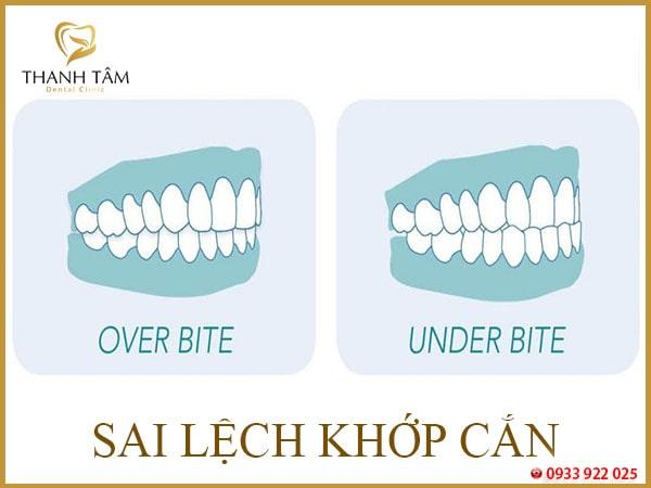 răng vẩu nhẹ