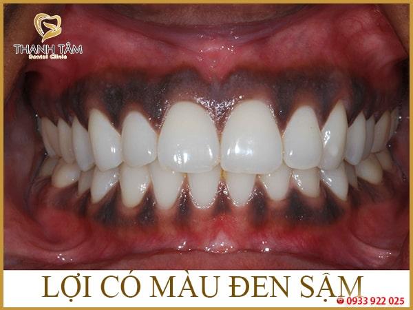 nướu răng bị đen