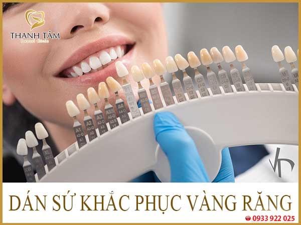 Cách chữa răng ố vàng thành trắng