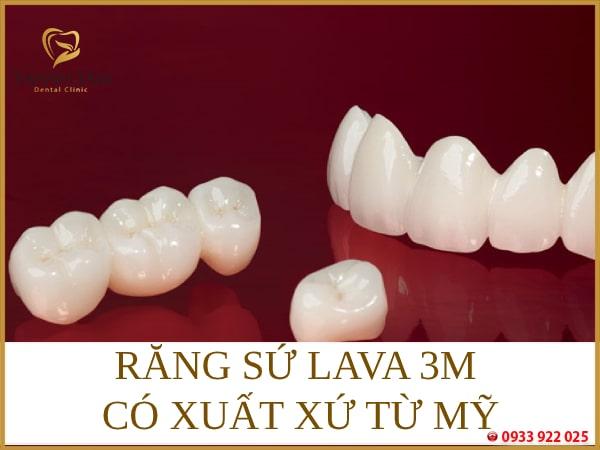 Răng sứ lava 3m