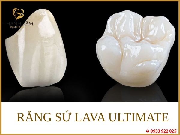 Răng sứ Lava Ultimate