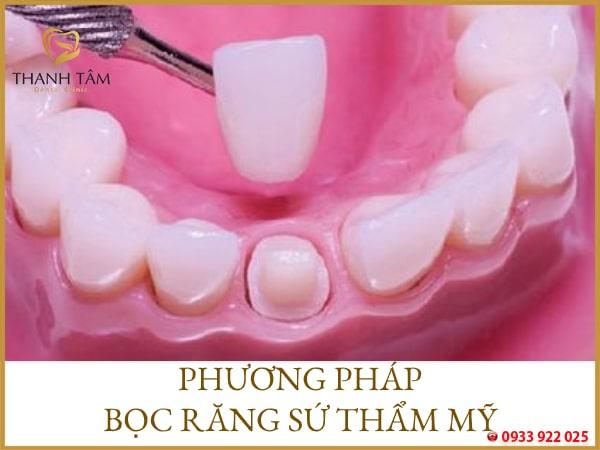 Phương pháp bọc răng sứ