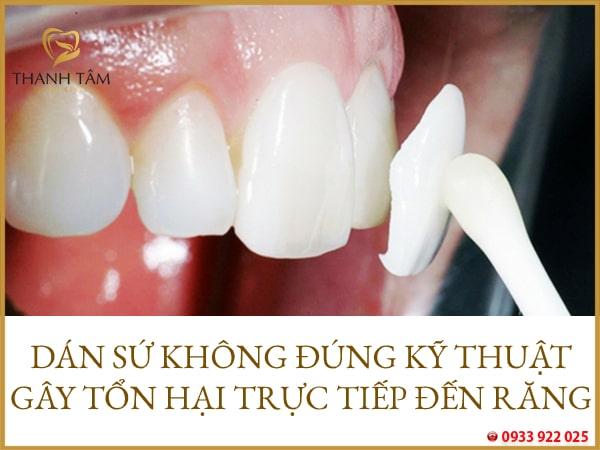 gây ảnh hưởng xấu đến răng