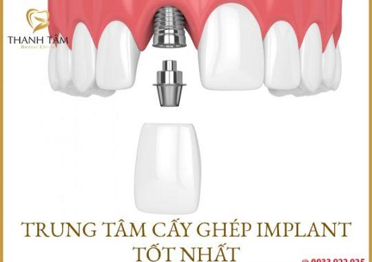 Trung tâm cấy ghép Implant tốt