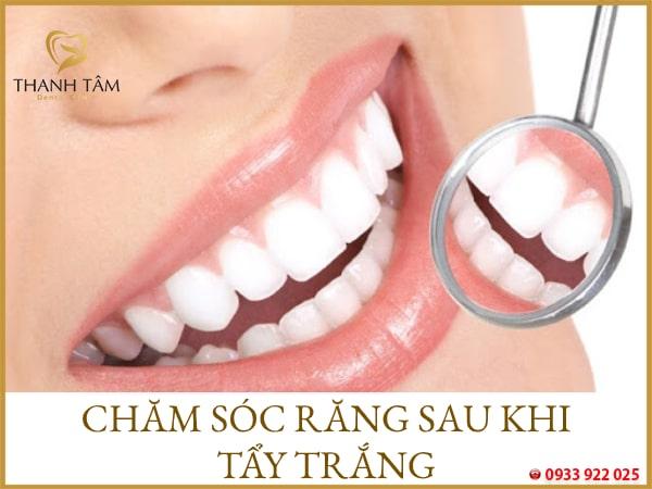 chăm sóc răng sau khi tẩy