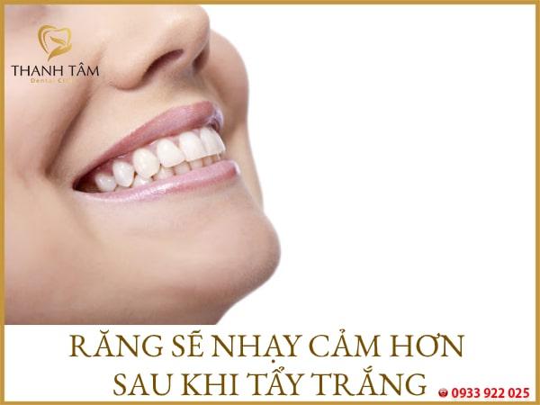 nên chăm sóc răng kỹ càng